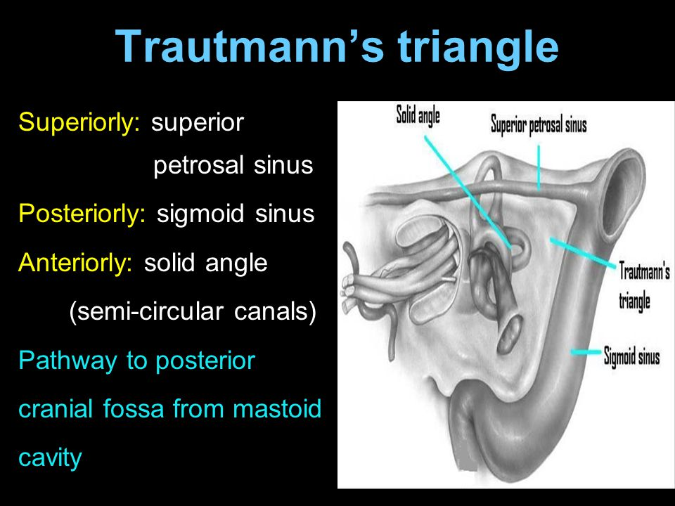 Trautmann's triangle Superiorly: superior petrosal sinus Posteriorly: sigmoid sinus Anteriorly: solid angle (semi-circular canals) Pathway to posterio