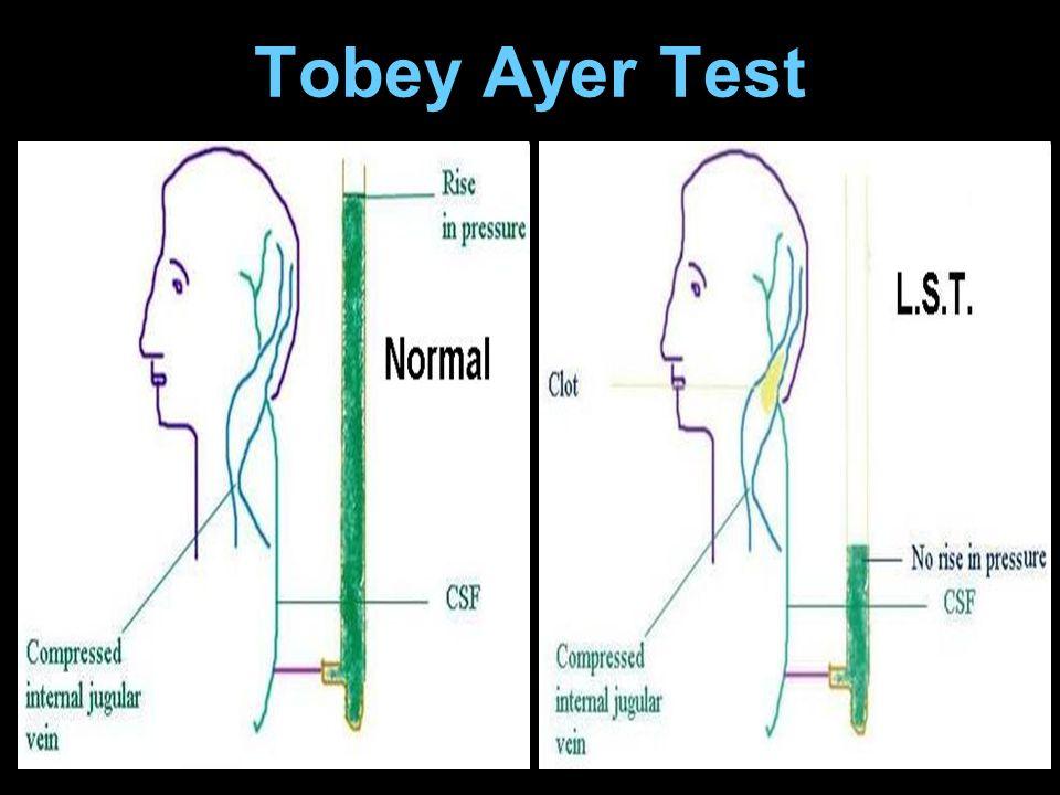 Tobey Ayer Test
