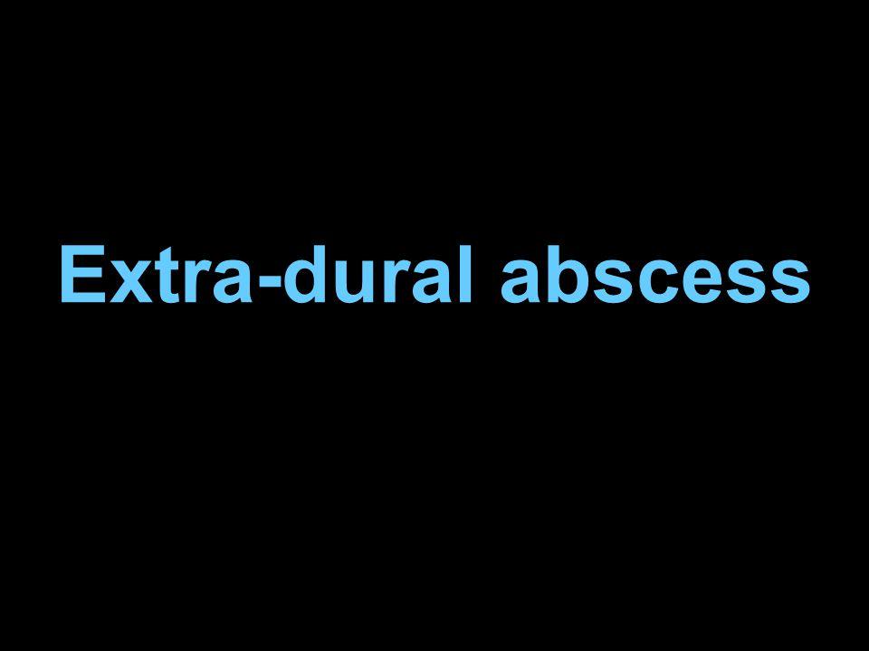 Extra-dural abscess