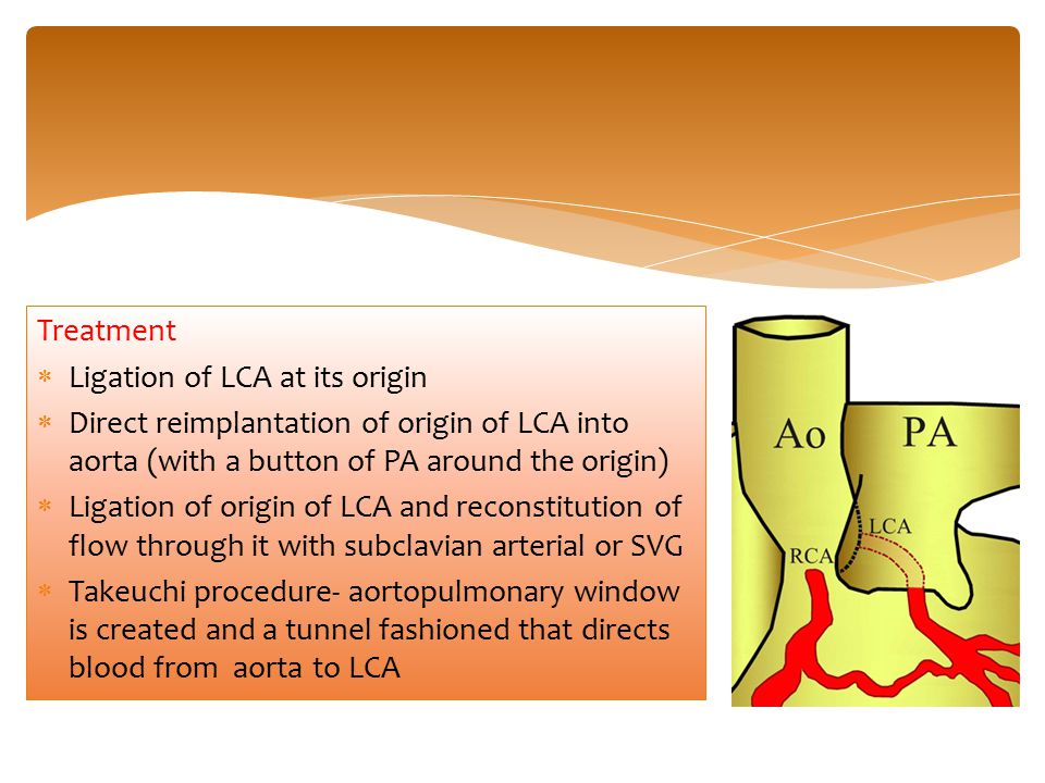Treatment  Ligation of LCA at its origin  Direct reimplantation of origin of LCA into aorta (with a button of PA around the origin)  Ligation of or