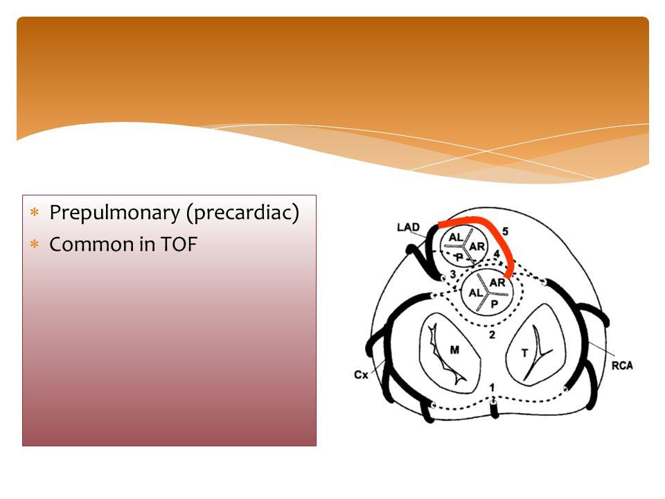  Prepulmonary (precardiac)  Common in TOF