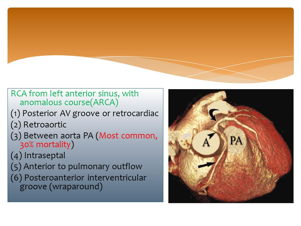RCA from left anterior sinus, with anomalous course(ARCA) (1) Posterior AV groove or retrocardiac (2) Retroaortic (3) Between aorta PA (Most common, 3