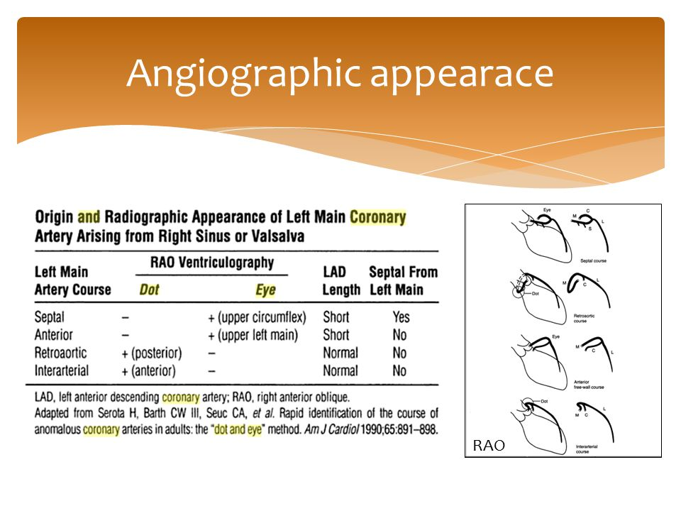 Angiographic appearace RAO