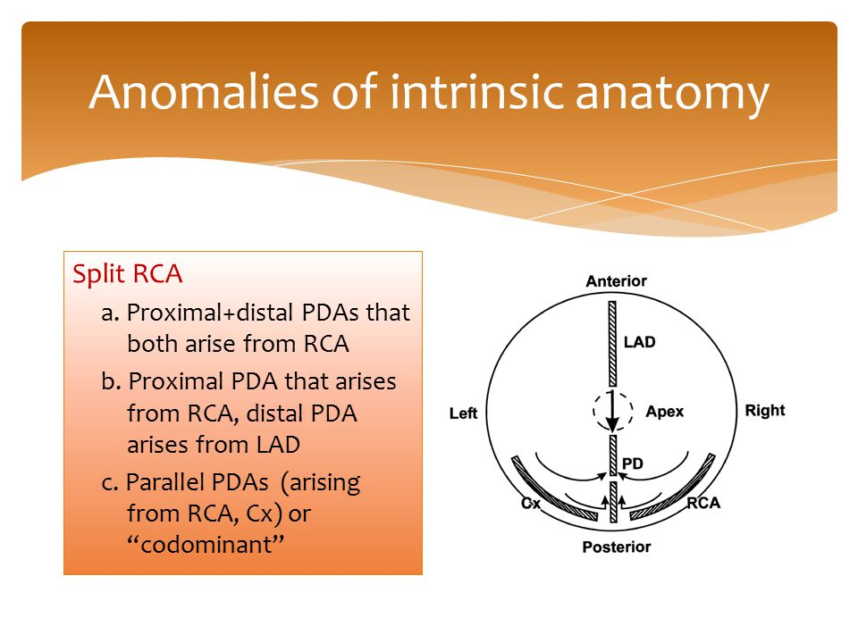 Anomalies of intrinsic anatomy Split RCA a. Proximal+distal PDAs that both arise from RCA b. Proximal PDA that arises from RCA, distal PDA arises from