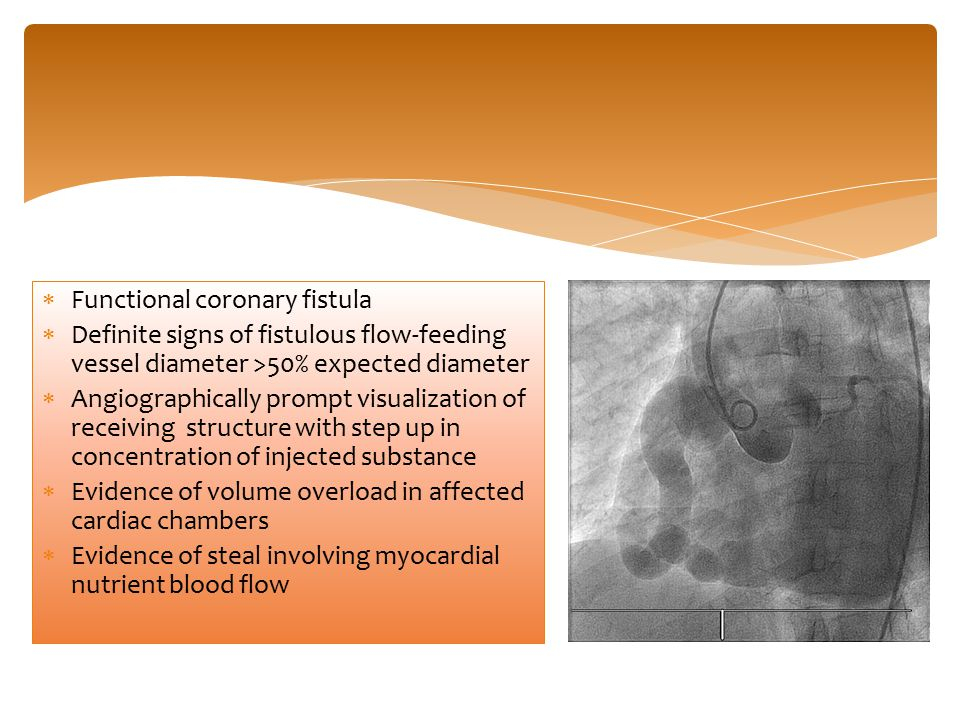  Functional coronary fistula  Definite signs of fistulous flow-feeding vessel diameter >50% expected diameter  Angiographically prompt visualizatio