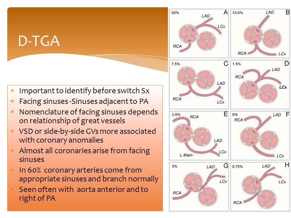 D-TGA  Important to identify before switch Sx  Facing sinuses -Sinuses adjacent to PA  Nomenclature of facing sinuses depends on relationship of gr