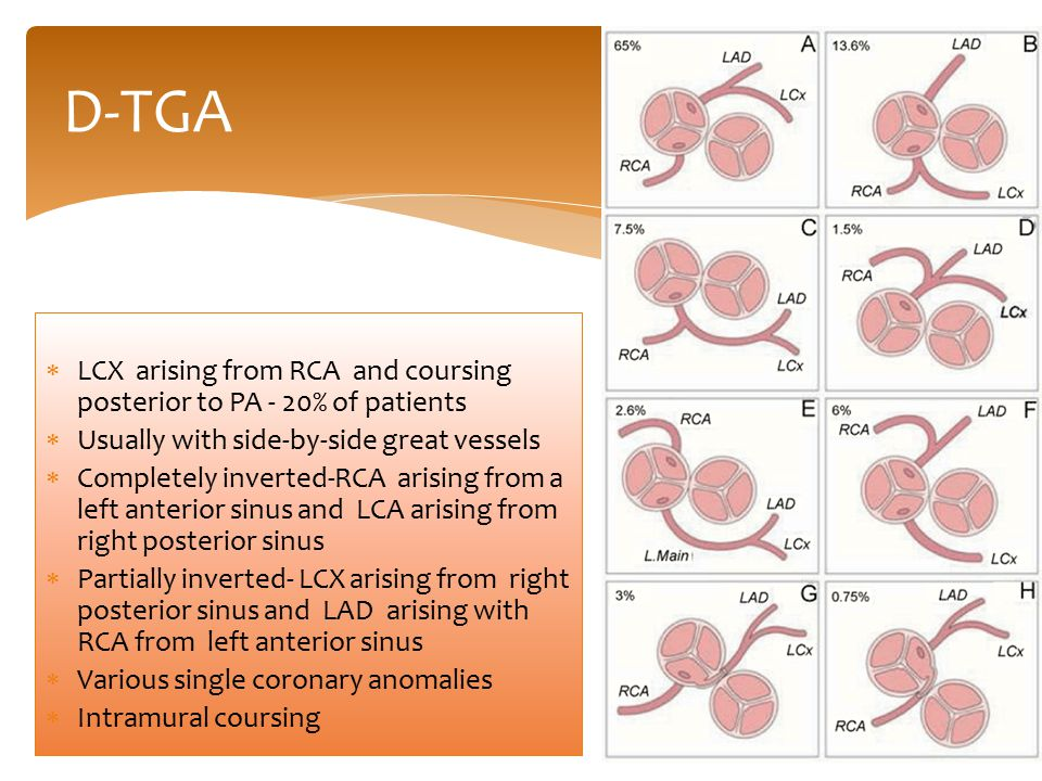 D-TGA  LCX arising from RCA and coursing posterior to PA - 20% of patients  Usually with side-by-side great vessels  Completely inverted-RCA arisin
