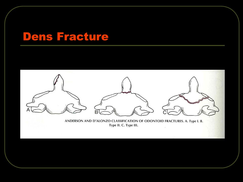 Dens Fracture