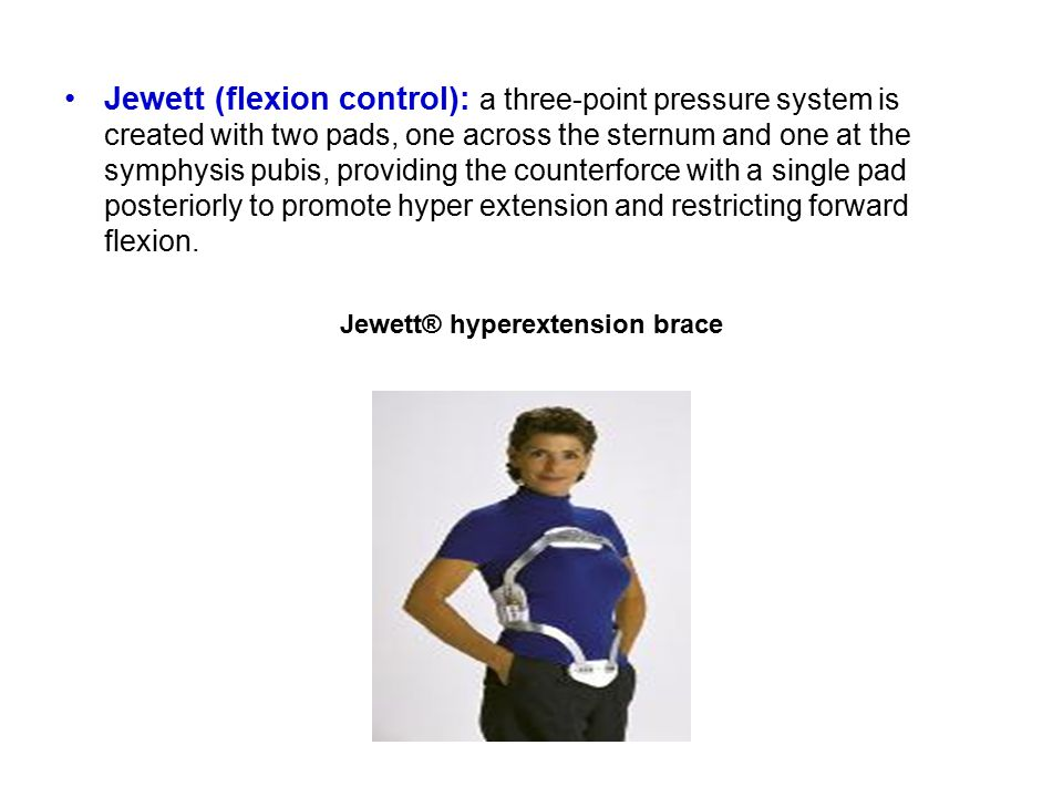 Jewett (flexion control): a three-point pressure system is created with two pads, one across the sternum and one at the symphysis pubis, providing the counterforce with a single pad posteriorly to promote hyper extension and restricting forward flexion.
