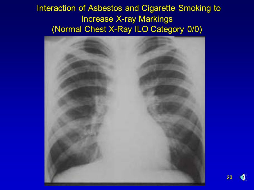 23 Interaction of Asbestos and Cigarette Smoking to Increase X-ray Markings (Normal Chest X-Ray ILO Category 0/0) Interaction of Asbestos and Cigarett