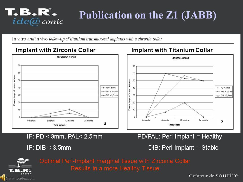www.tbridea.com Optimal Peri-Implant marginal tissue with Zirconia Collar Results in a more Healthy Tissue Implant with Zirconia CollarImplant with Titanium Collar IF: PD < 3mm, PAL< 2.5mm PD/PAL: Peri-Implant = Healthy IF: DIB < 3.5mm DIB: Peri-Implant = Stable Publication on the Z1 (JABB)
