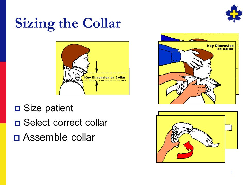 5 Sizing the Collar  Assemble collar  Select correct collar  Size patient