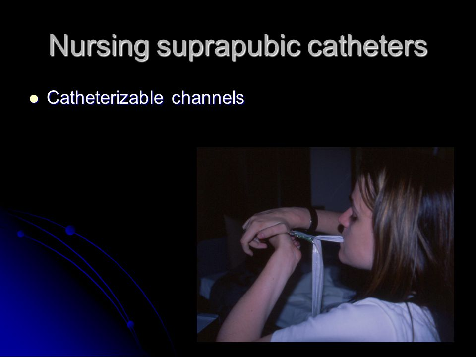 Nursing suprapubic catheters Catheterizable channels Catheterizable channels