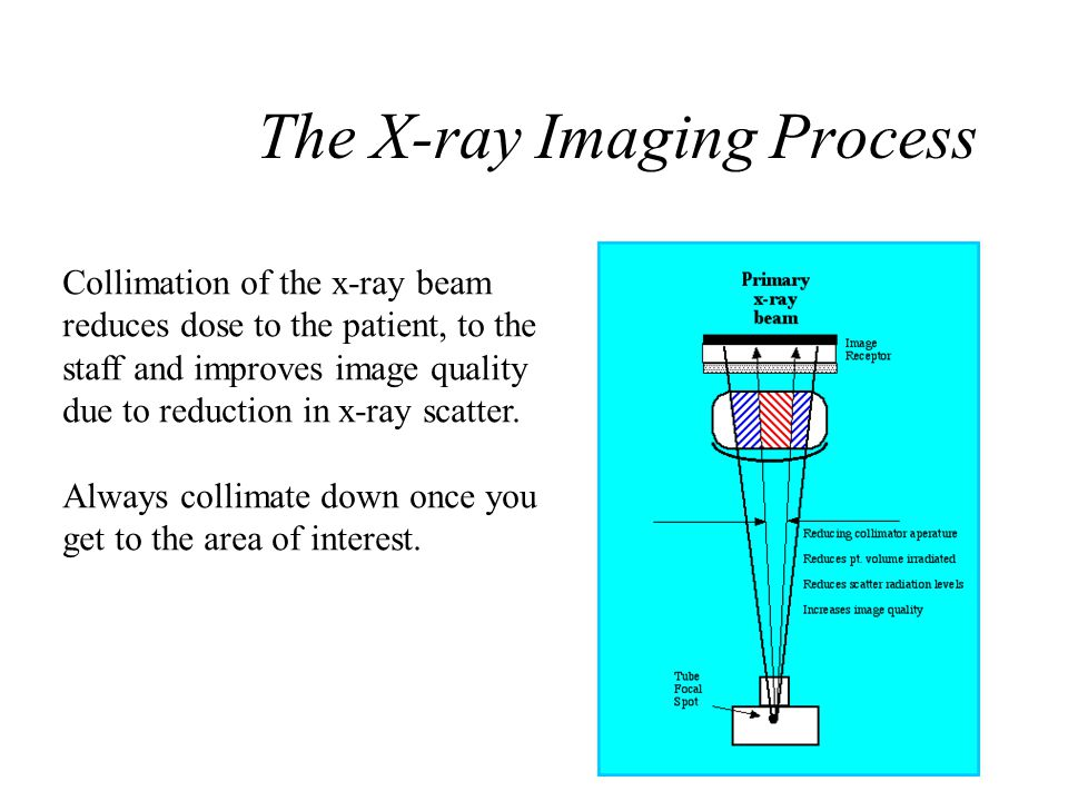 X-Ray Beam Spectrum - 100 kVp A.- Hypothetical x-ray spectrum B.