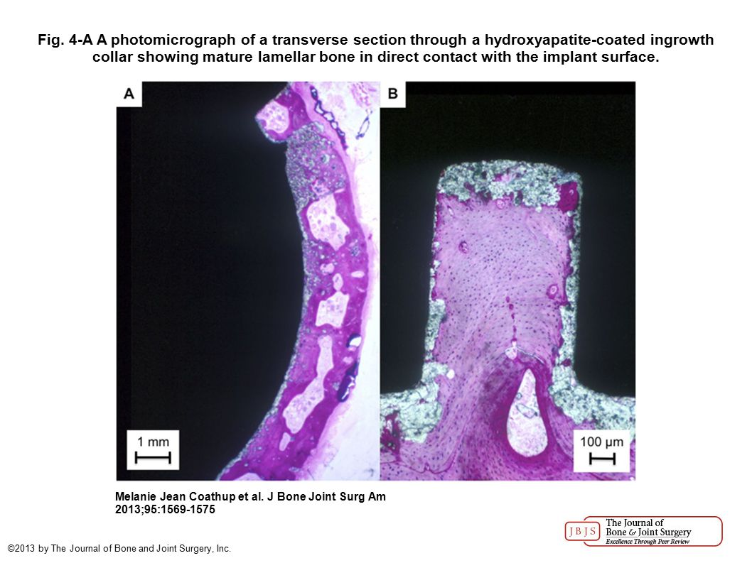 Fig. 4-A A photomicrograph of a transverse section through a hydroxyapatite-coated ingrowth collar showing mature lamellar bone in direct contact with