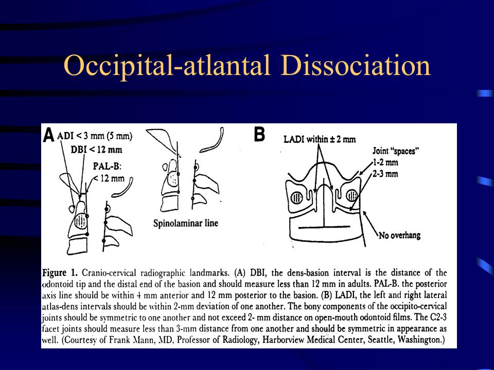 Occipital-atlantal Dissociation