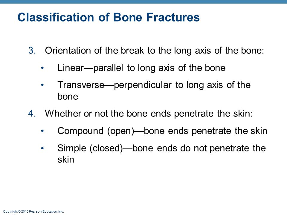 Copyright © 2010 Pearson Education, Inc. Classification of Bone Fractures 3.Orientation of the break to the long axis of the bone: Linear—parallel to