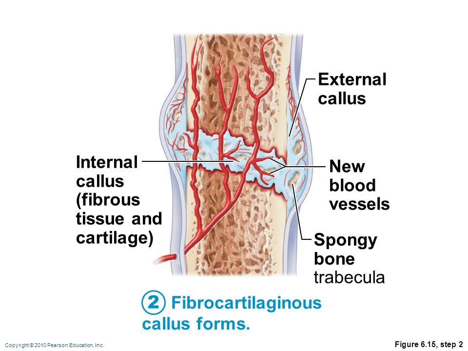 Copyright © 2010 Pearson Education, Inc. Figure 6.15, step 2 Fibrocartilaginous callus forms. 2 External callus New blood vessels Spongy bone trabecul