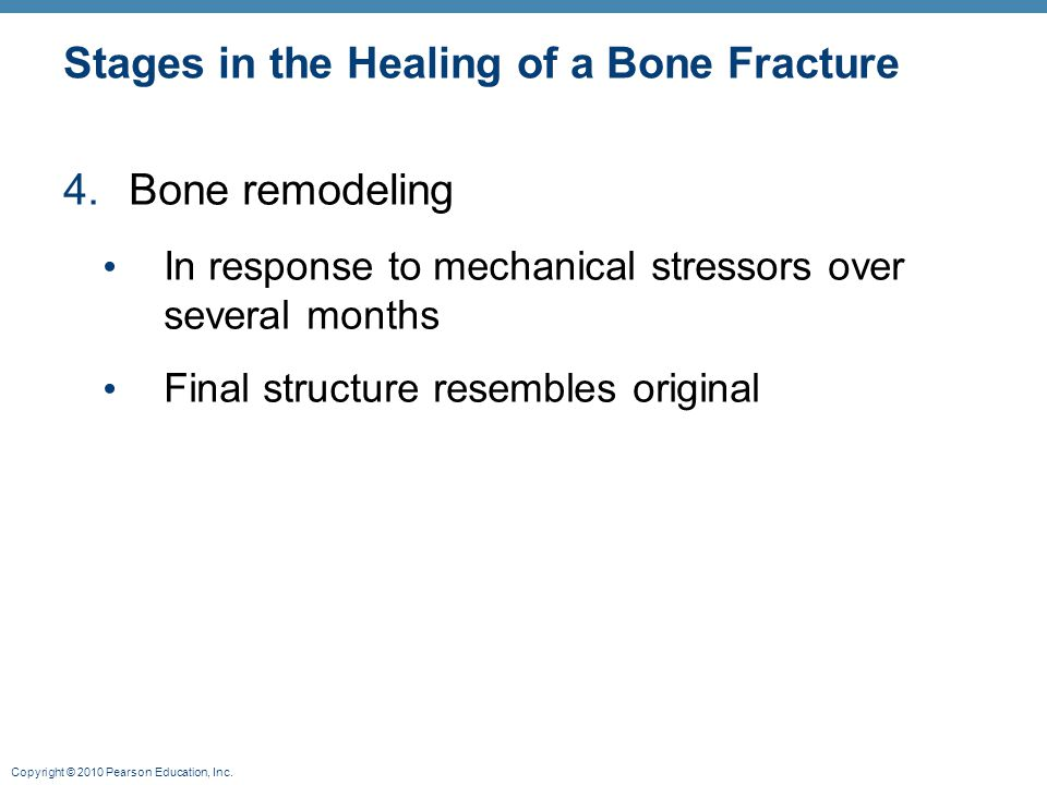 Copyright © 2010 Pearson Education, Inc. Stages in the Healing of a Bone Fracture 4.Bone remodeling In response to mechanical stressors over several m