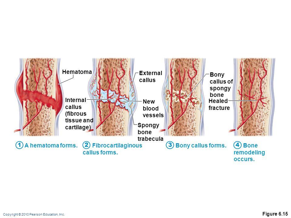 Copyright © 2010 Pearson Education, Inc. Figure 6.15 Hematoma External callus Bony callus of spongy bone Healed fracture New blood vessels Spongy bone