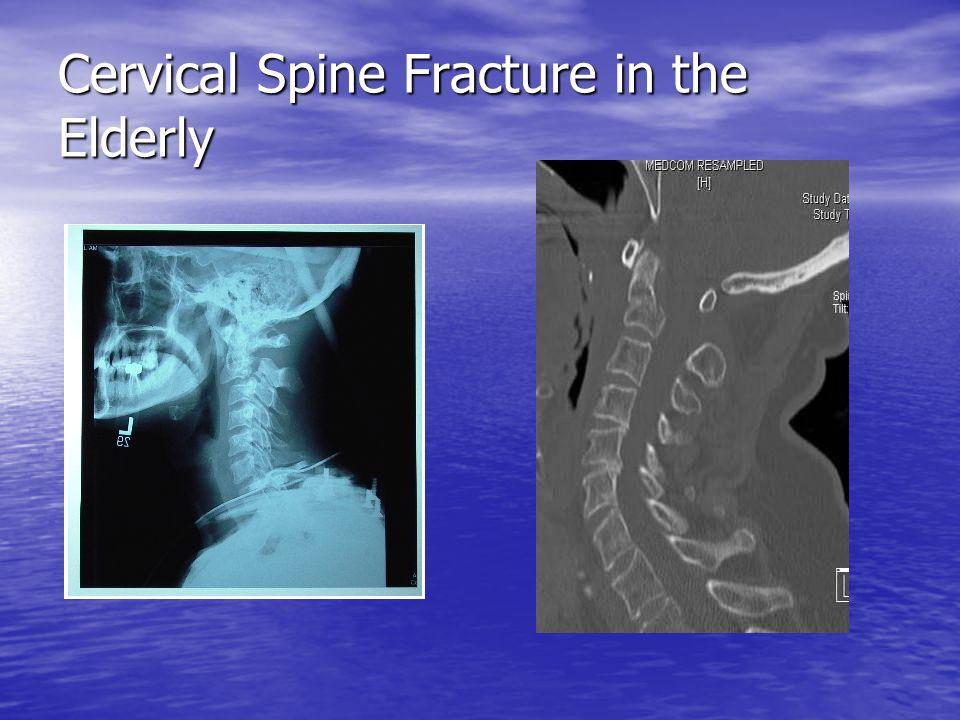Cervical Spine Fracture in the Elderly