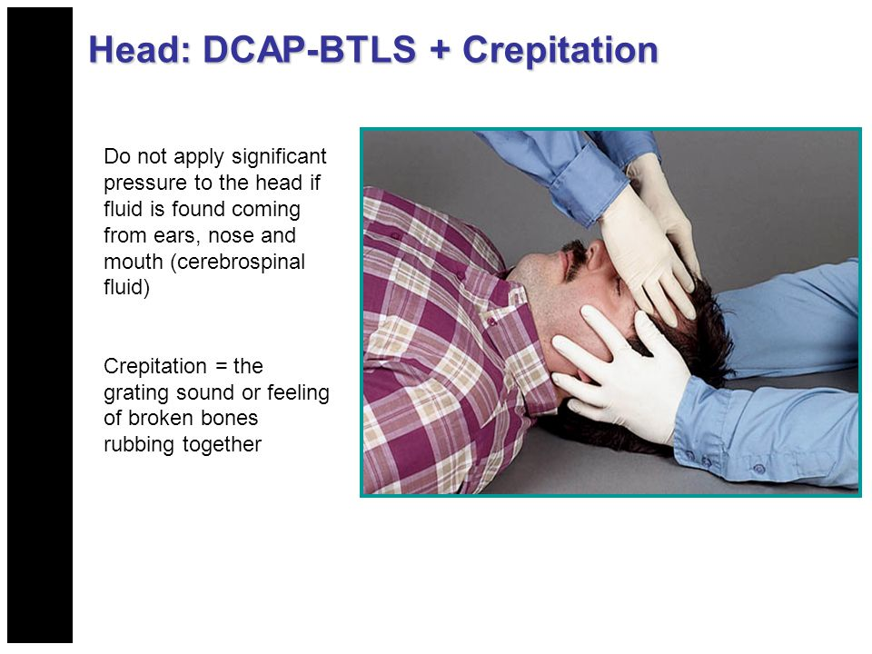 Head: DCAP-BTLS + Crepitation Do not apply significant pressure to the head if fluid is found coming from ears, nose and mouth (cerebrospinal fluid) C