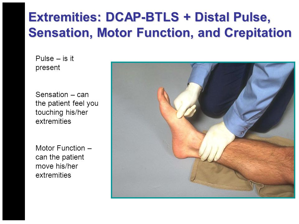 Extremities: DCAP-BTLS + Distal Pulse, Sensation, Motor Function, and Crepitation Pulse – is it present Sensation – can the patient feel you touching his/her extremities Motor Function – can the patient move his/her extremities