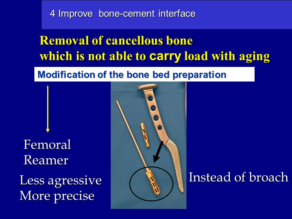 4 Improve bone-cement interface FemoralReamer Modification of the bone bed preparation Less agressive More precise Instead of broach Removal of cancel