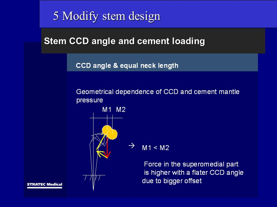 Stem CCD angle and cement loading 5 Modify stem design