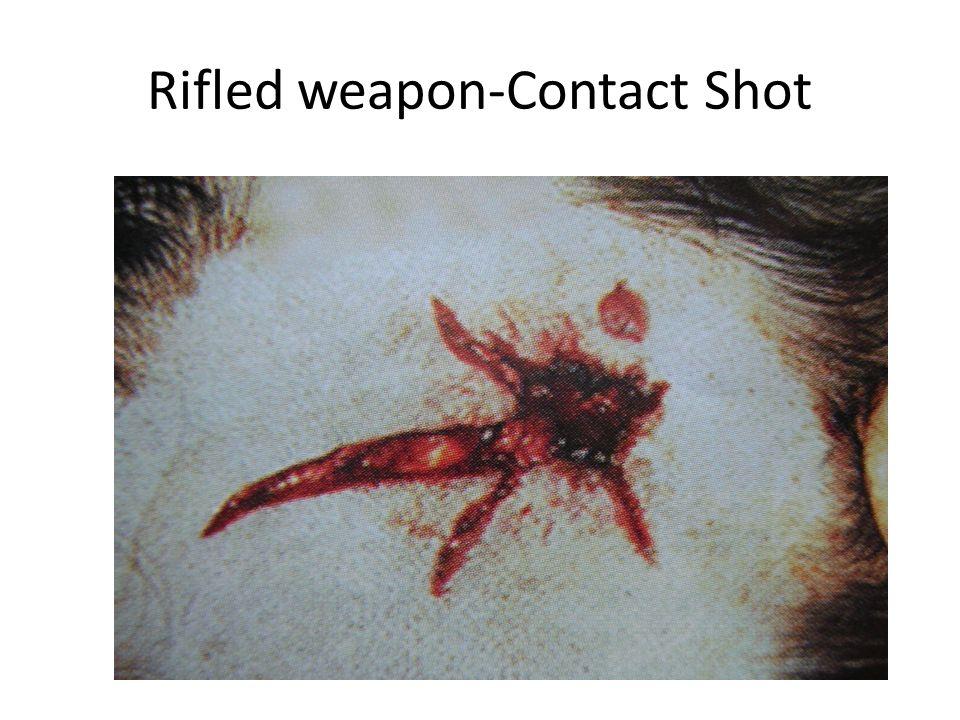 Rifled weapon-Contact Shot