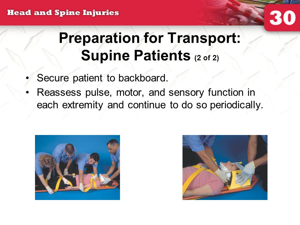 Preparation for Transport: Supine Patients (2 of 2) Secure patient to backboard. Reassess pulse, motor, and sensory function in each extremity and con