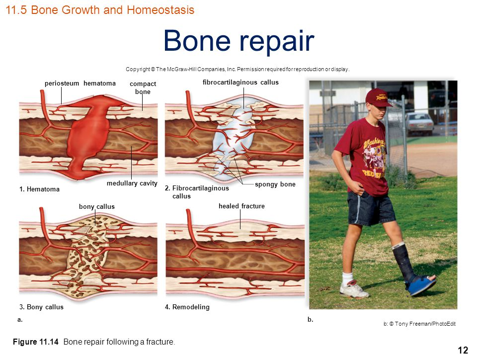 12 Bone repair Copyright © The McGraw-Hill Companies, Inc. Permission required for reproduction or display. periosteumhematoma compact bone fibrocarti