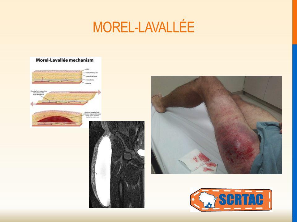 MOREL-LAVALLÉE