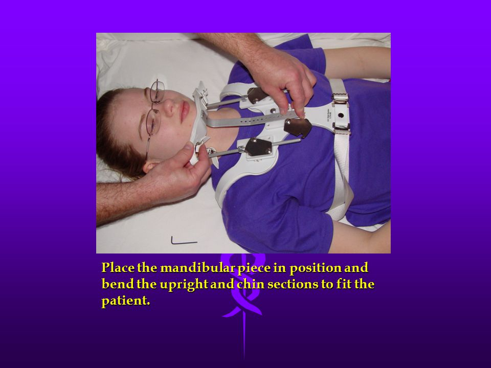 Place the mandibular piece in position and bend the upright and chin sections to fit the patient.