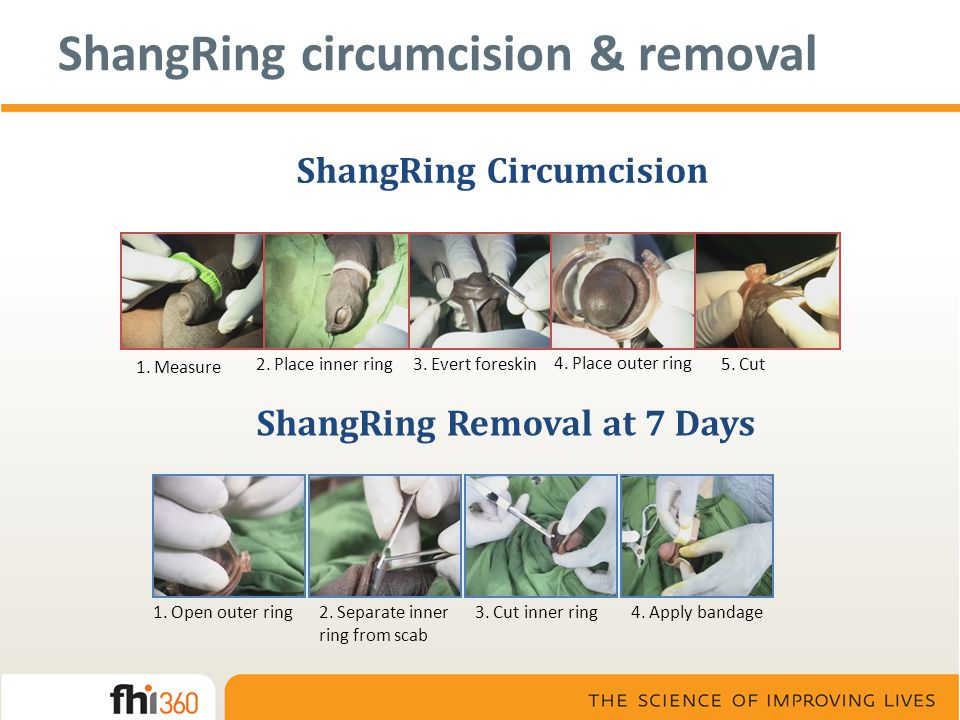 ShangRing Circumcision 1. Measure 2. Place inner ring3. Evert foreskin 4. Place outer ring 5. Cut ShangRing Removal at 7 Days 1. Open outer ring2. Sep