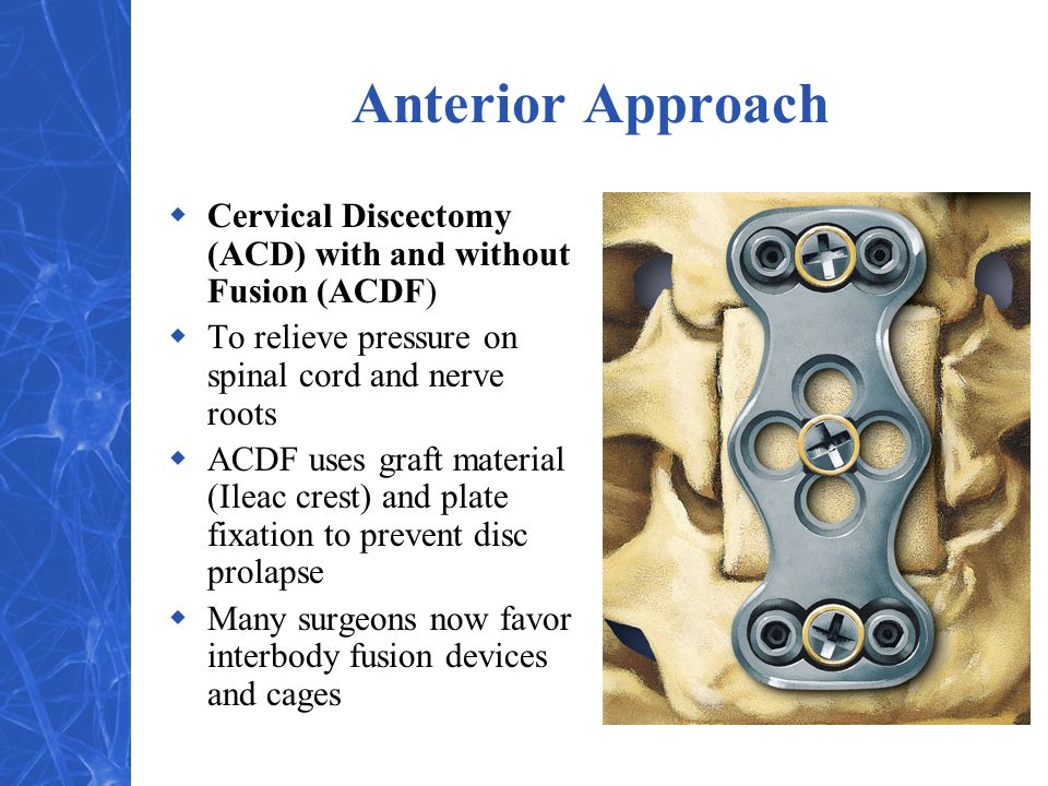 Anterior Approach  Cervical Discectomy (ACD) with and without Fusion (ACDF)  To relieve pressure on spinal cord and nerve roots  ACDF uses graft material (Ileac crest) and plate fixation to prevent disc prolapse  Many surgeons now favor interbody fusion devices and cages