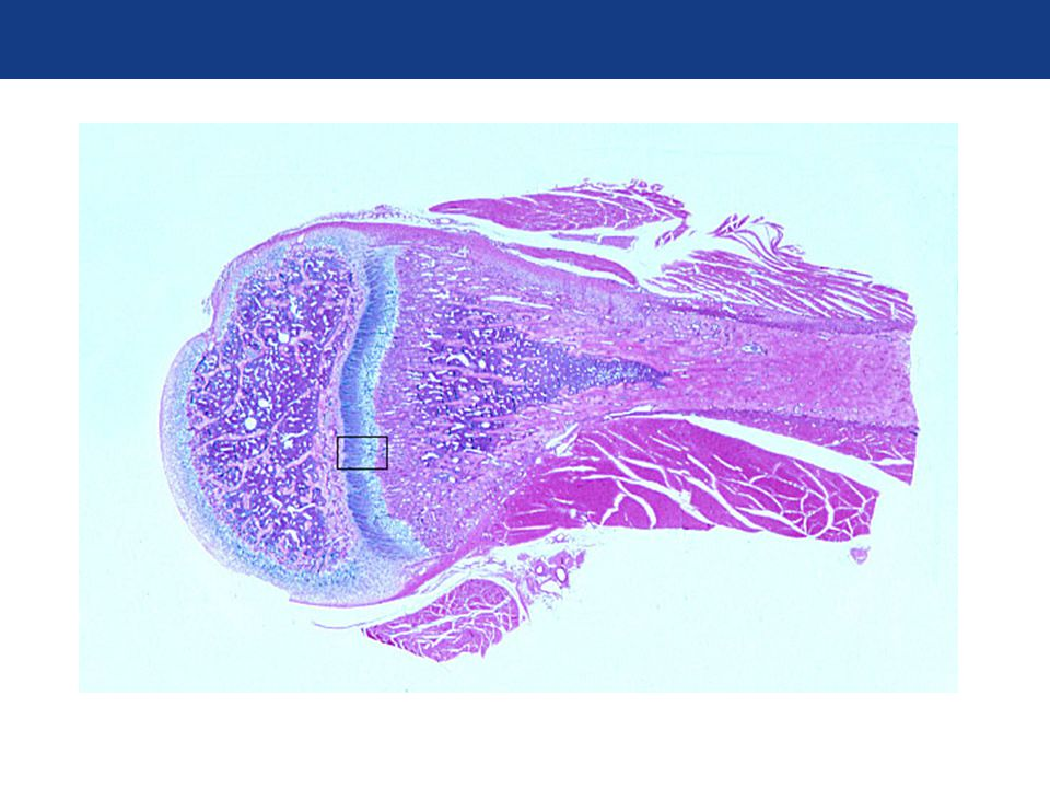 Endochondral Ossification Bone development from hyaline cartilage Bone growth in length Shotgun Biology