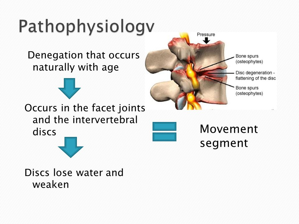 Denegation that occurs naturally with age Occurs in the facet joints and the intervertebral discs Discs lose water and weaken Movement segment