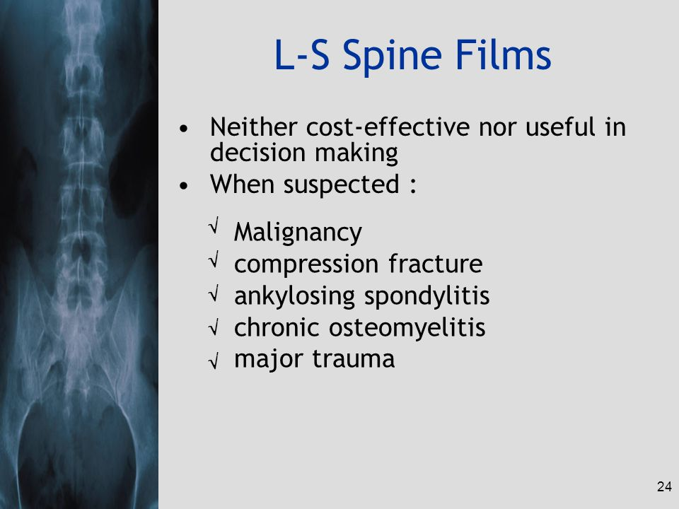 24 L-S Spine Films Neither cost-effective nor useful in decision making When suspected : Malignancy compression fracture ankylosing spondylitis chroni