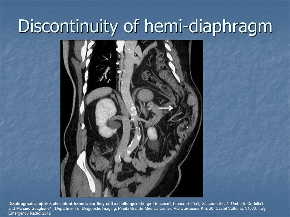 Discontinuity of hemi-diaphragm Diaphragmatic injuries after blunt trauma: are they still a challenge? Giorgio Bocchini1, Franco Guida1, Giacomo Sica1