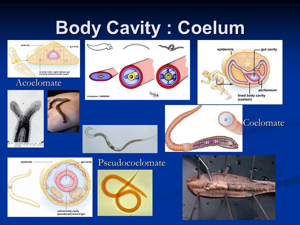 Body Cavity : Coelum Acoelomate Pseudocoelomate Coelomate