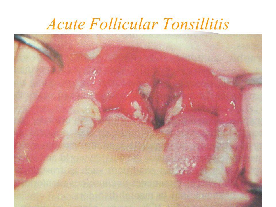 Acute Follicular Tonsillitis