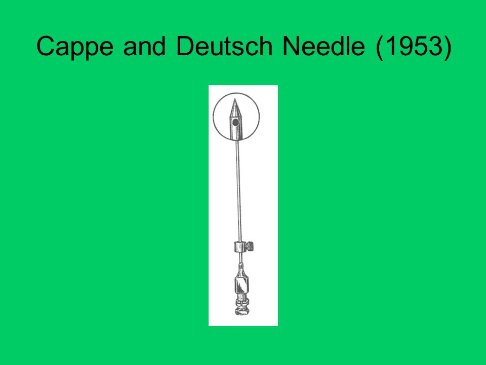 Cappe and Deutsch Needle (1953)