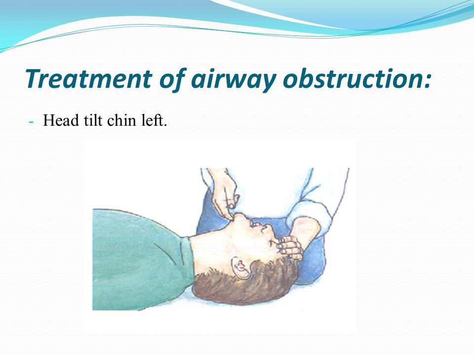 Treatment of airway obstruction: - Head tilt chin left.