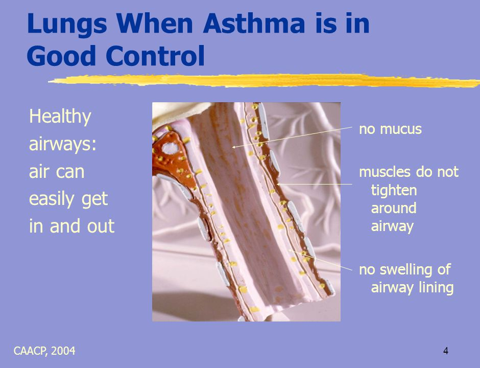 3 What is Asthma.  Defining Features: 1. Airway swelling 2.