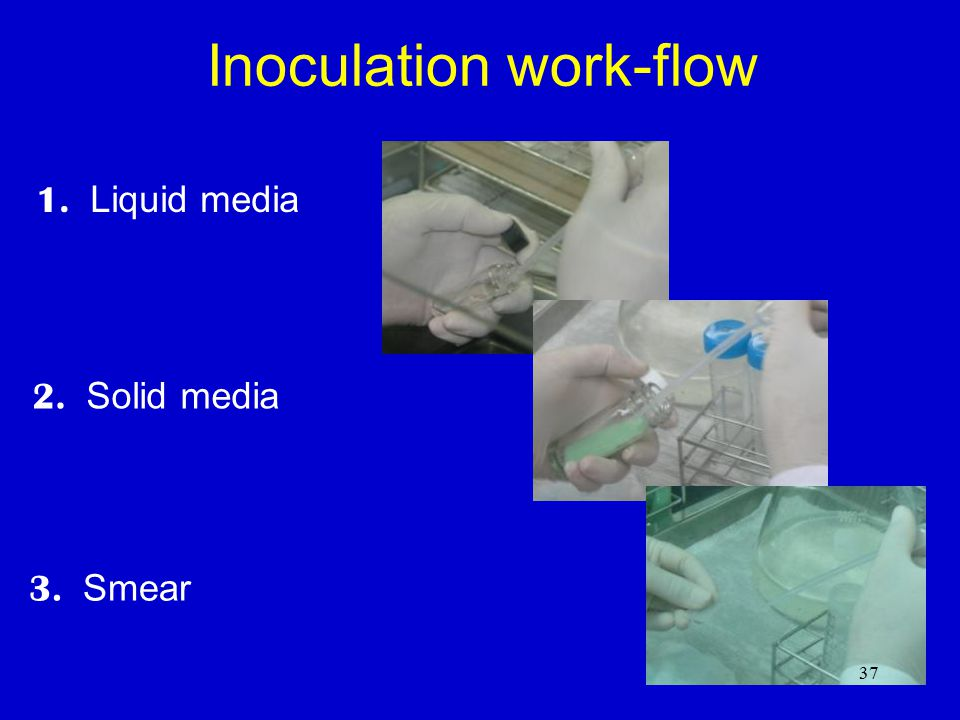 Inoculation of liquid culture media – key points Minimize the production of aerosols: –open the caps of liquid media slowly; –avoid vigorous shaking of the specimen; –do not expel the last drop from the pipette.