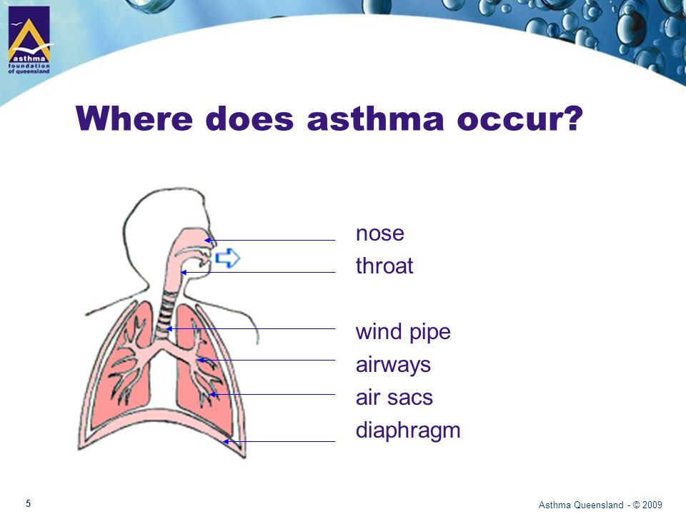 Where does asthma occur.
