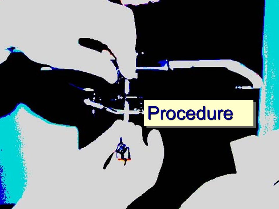 ProcedureProcedure