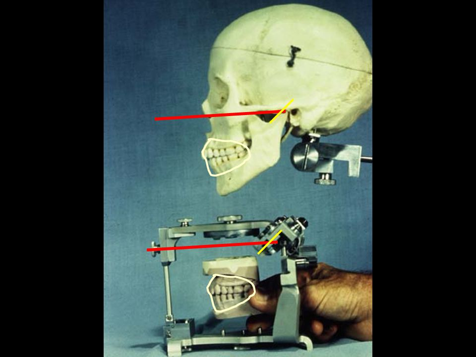 Articulator (ar tik ye la ter), n.3. Dentistry.
