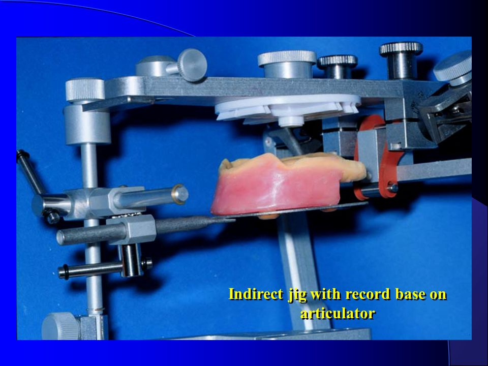 Indirect jig with record base on articulator